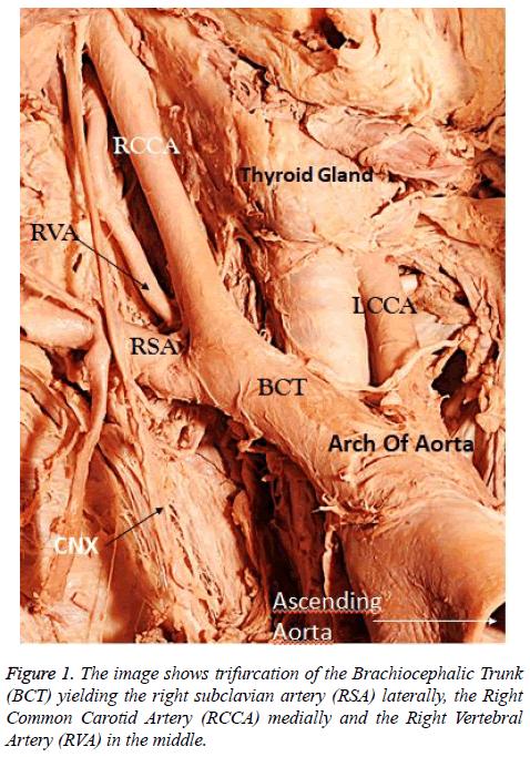 annals-cardiovascular-thoracic-surgery-trifurcation-Brachiocephalic