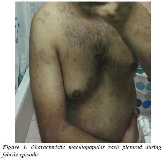 archives-of-general-internal-medicine-maculopapular-rash