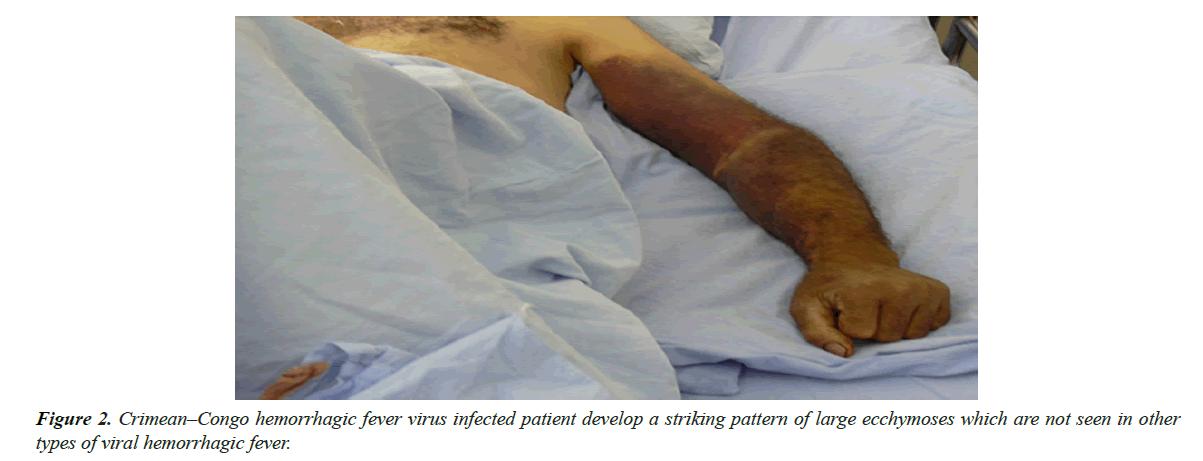 bacteriology-infectious-diseases-hemorrhagic-fever