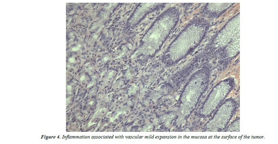 biology-medicine-case-report-Inflammation-associated