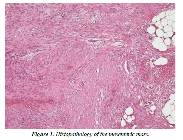 biology-medicine-case-report-mesenteric-mass