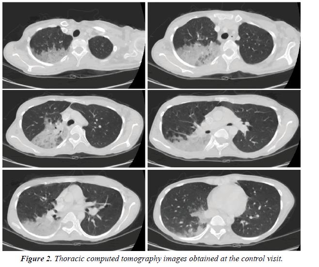 biology-medicine-case-report-tomography