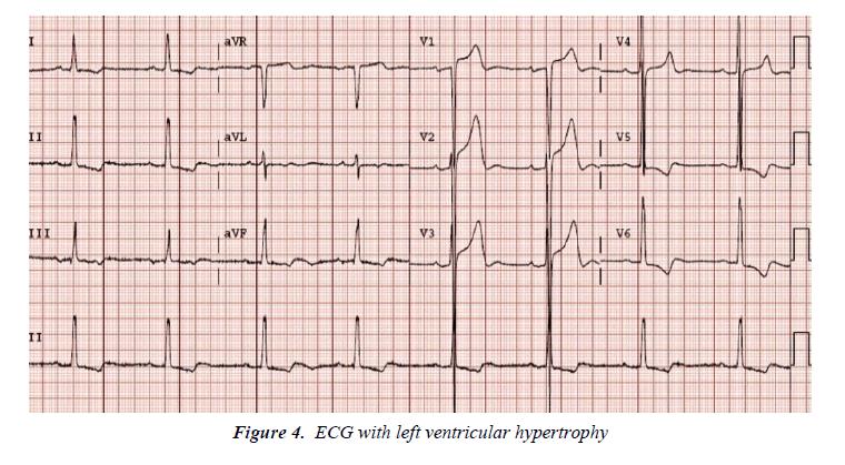 biology-medicine-case-report-ventricular-hypertrophy