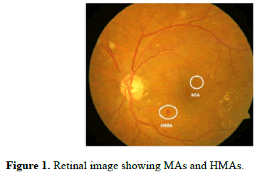 biomedical-imaging-bioengineering-Retinal-image