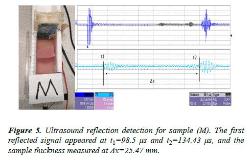 biomedical-imaging-bioengineering-detection