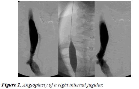 biomedical-imaging-bioengineering-internal-jugular