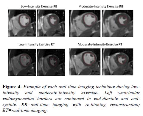 biomedical-imaging-bioengineering-moderate-intensity