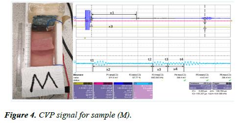 biomedical-imaging-bioengineering-signal