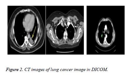 biomedres-cancer