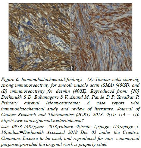 cancer-immunology-Immunohistochemical