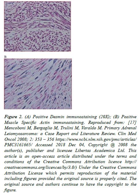 cancer-immunology-Positive-Desmin