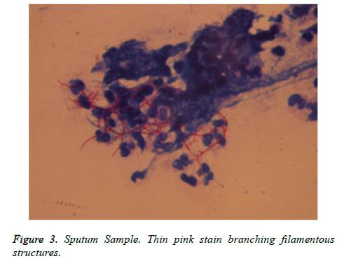 cancer-immunology-Sputum-Sample