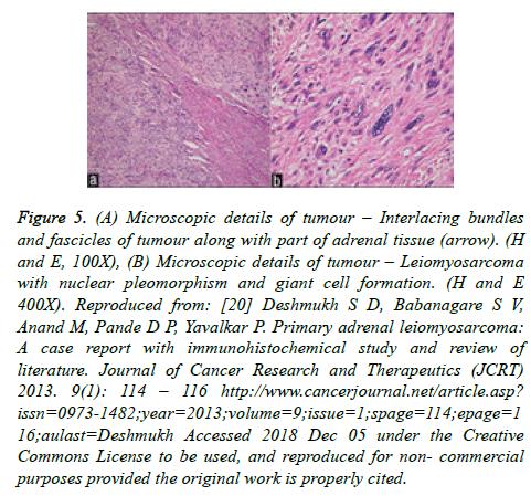cancer-immunology-adrenal-tissue