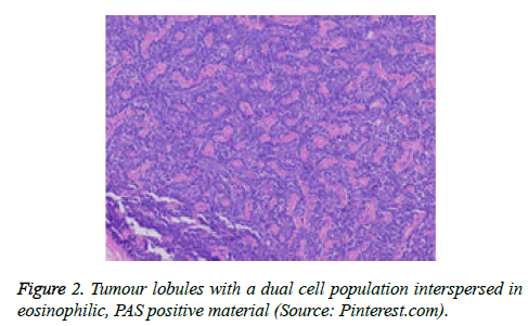 cancer-immunology-therapy-Tumour-lobules