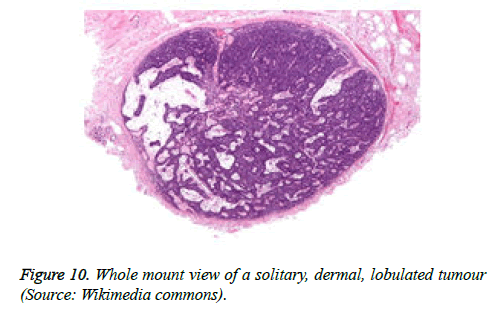 cancer-immunology-therapy-solitary-dermal