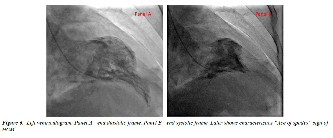 cardiovascular-medicine-Left-ventriculogram