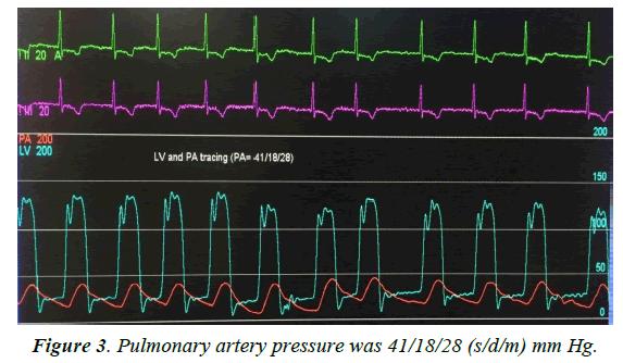cardiovascular-medicine-Pulmonary-artery
