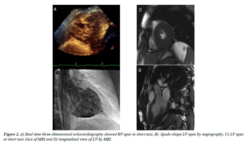 cardiovascular-medicine-apex-angiography