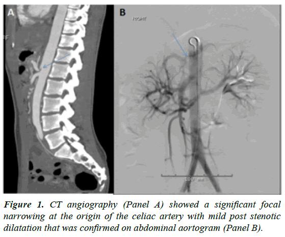 cardiovascular-medicine-focal-narrowing