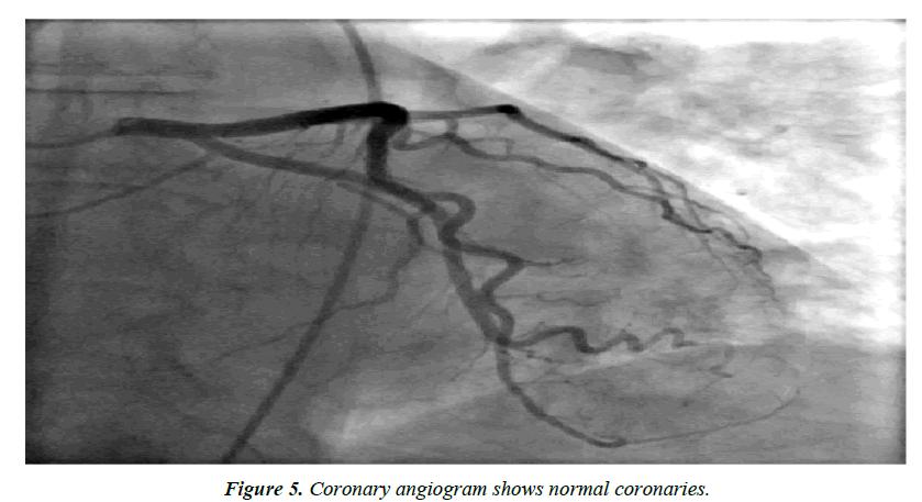 cardiovascular-medicine-normal-coronaries