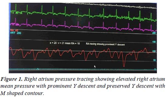 cardiovascular-medicine-pressure-prominent
