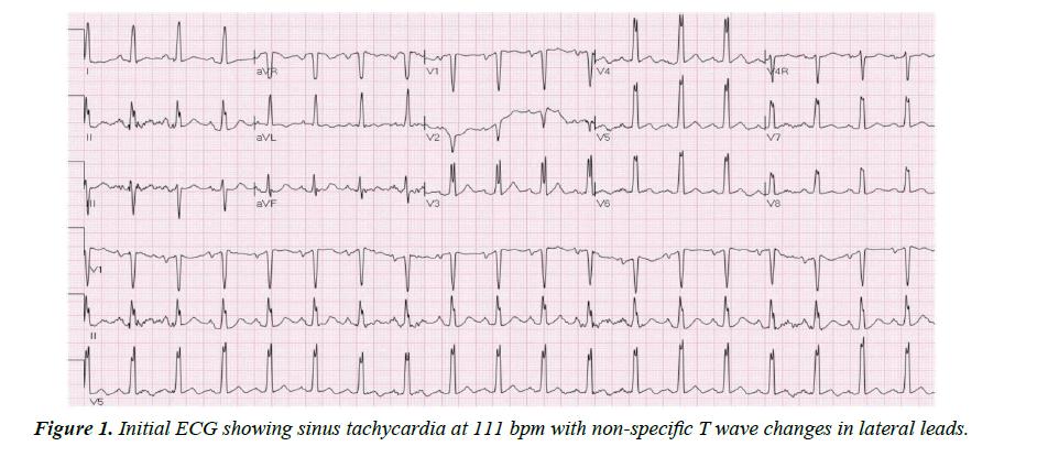 cardiovascular-medicine-sinus-tachycardia