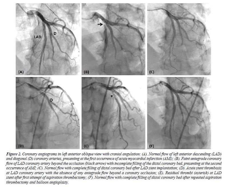 cardiovascular-medicine-therapeutics-Coronary-angiograms-left-anterior-oblique