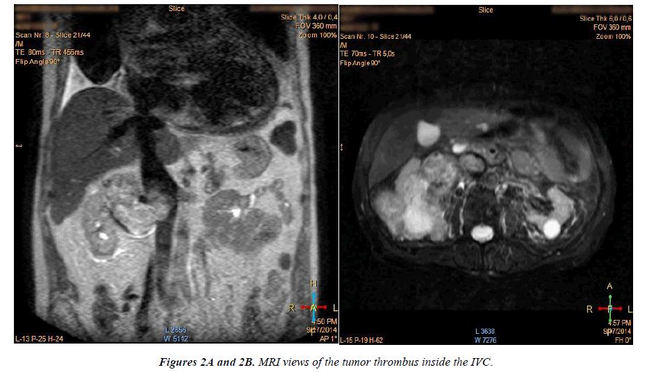 cardiovascular-medicine-therapeutics-MRI-views-tumor-thrombu-IVC