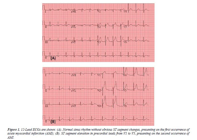 cardiovascular-medicine-therapeutics-Normal-sinus-rhythm-obvious-ST-segment