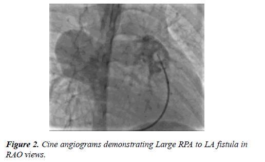 cardiovascular-medicine-therapeutics-angiograms