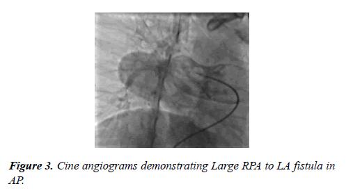 cardiovascular-medicine-therapeutics-cine-angiograms