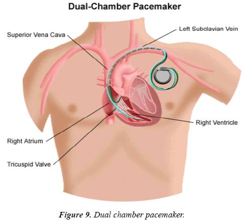 cardiovascular-medicine-therapeutics-dual