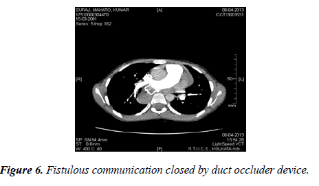 cardiovascular-medicine-therapeutics-duct-occluder