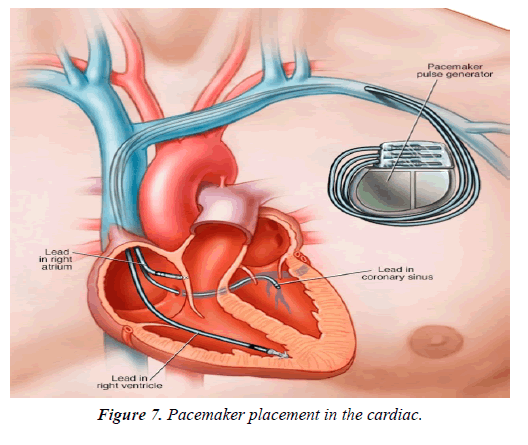 cardiovascular-medicine-therapeutics-placement