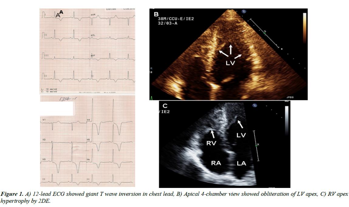 cardiovascular-medicine-wave-inversion