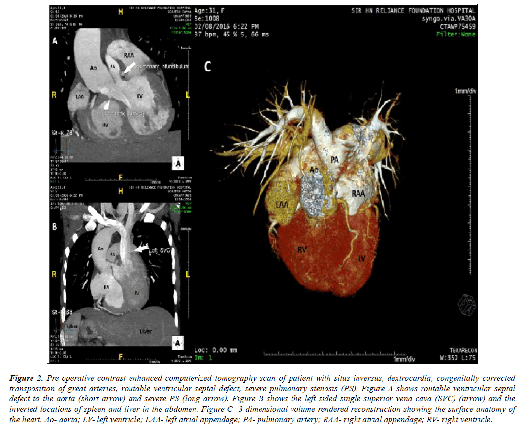 cardiovascular-thoracic-surgery-tomography-scan