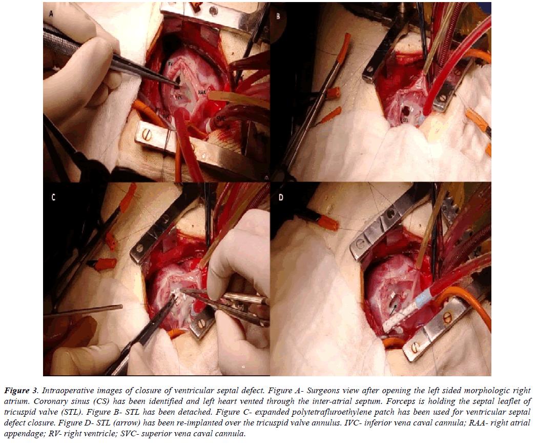 cardiovascular-thoracic-surgery-tomography-scan