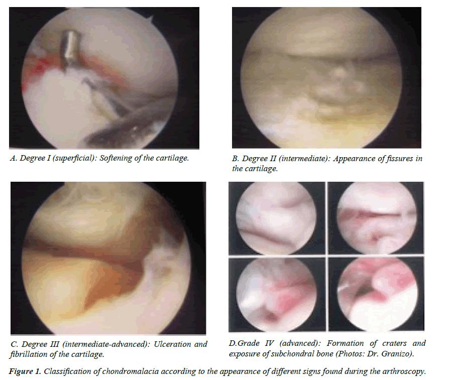 case-reports-in-surgery-invasive-procedures-Classification-chondromalacia