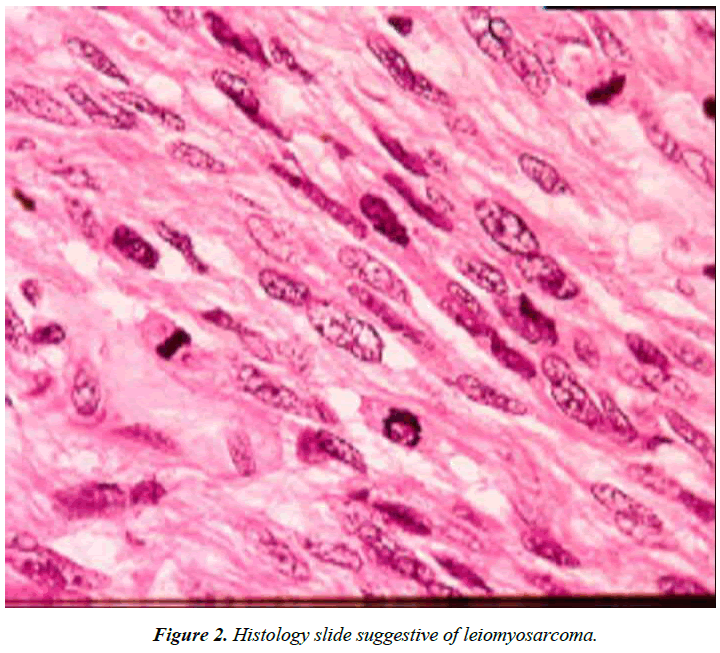 cholesterol-and-heart-disease-leiomyosarcoma