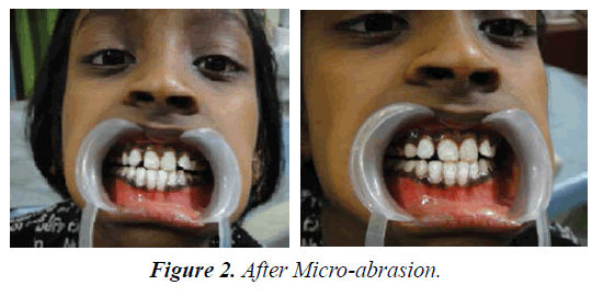 clinical-dentistry-Micro-abrasion