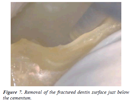 clinical-dentistry-fractured-dentin-surface