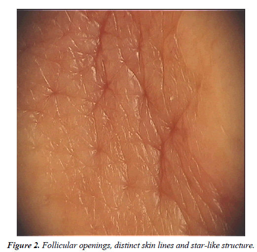 clinical-dermatology-Follicular-openings