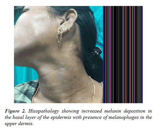 clinical-dermatology-Hisopathology