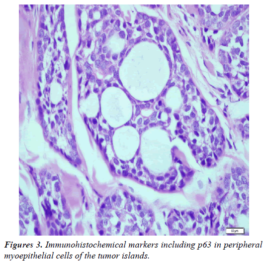 clinical-dermatology-Immunohistochemical