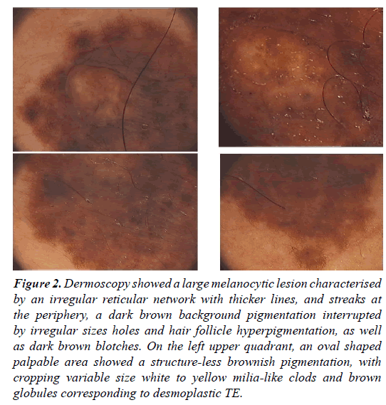 clinical-dermatology-brown-melanocytic-lesion