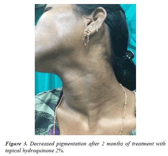 clinical-dermatology-pigmentation