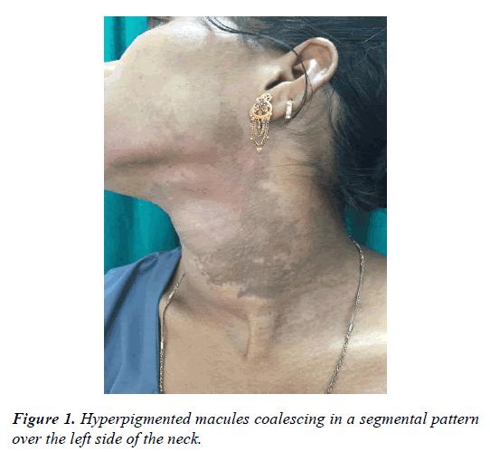 clinical-dermatology-segmental-pattern