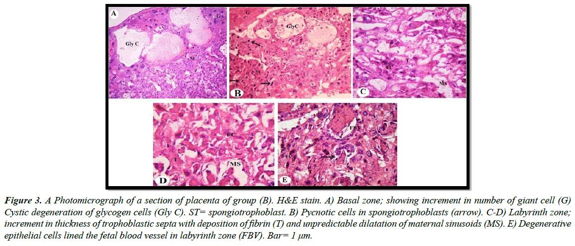 clinical-experimental-toxicology-trophoblastic-septa