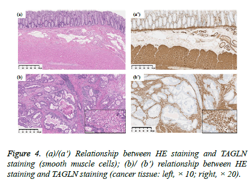 clinical-oncology-HE-staining