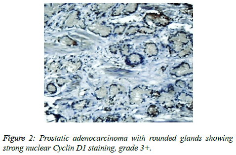 clinical-oncology-rounded-glands